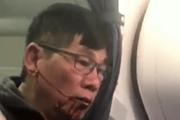 [Video] Bác sỹ gốc Việt bị lôi khỏi máy bay của United Airlines