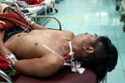 Cứu sống một bệnh nhân bị dao đâm xuyên từ cổ xuống phổi