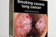 Australia thắng kiện tại WTO về luật đưa ảnh trên vỏ bao thuốc lá