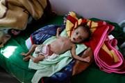 Liên hợp quốc kêu gọi quyên góp gần 3 tỷ USD để hỗ trợ Yemen