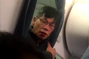 United Airlines mất gần 800 triệu USD sau vụ kéo lê bác sỹ gốc Việt