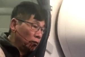United Airlines nhận thêm loạt chỉ trích vì vụ hành khách gốc Việt